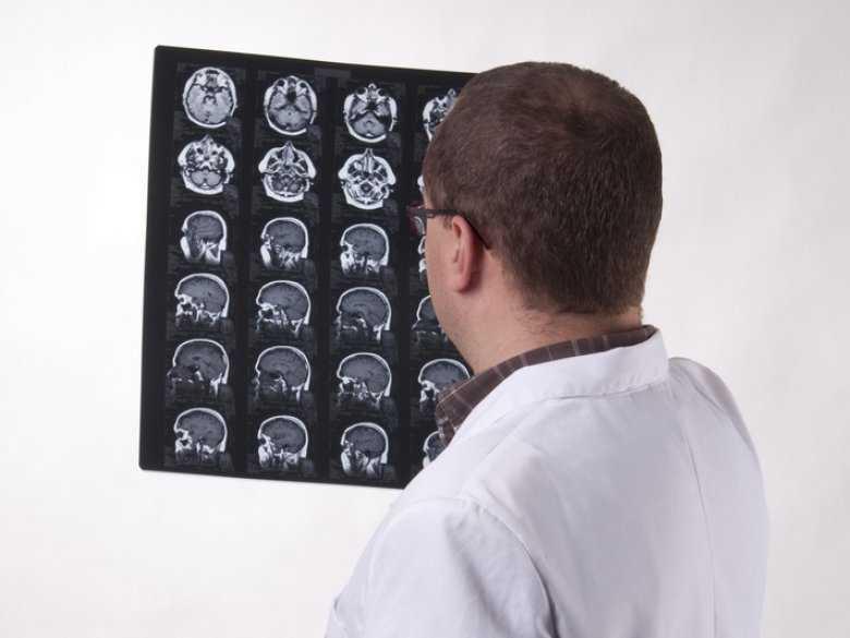 Neuroobrazowanie w psychiatrii