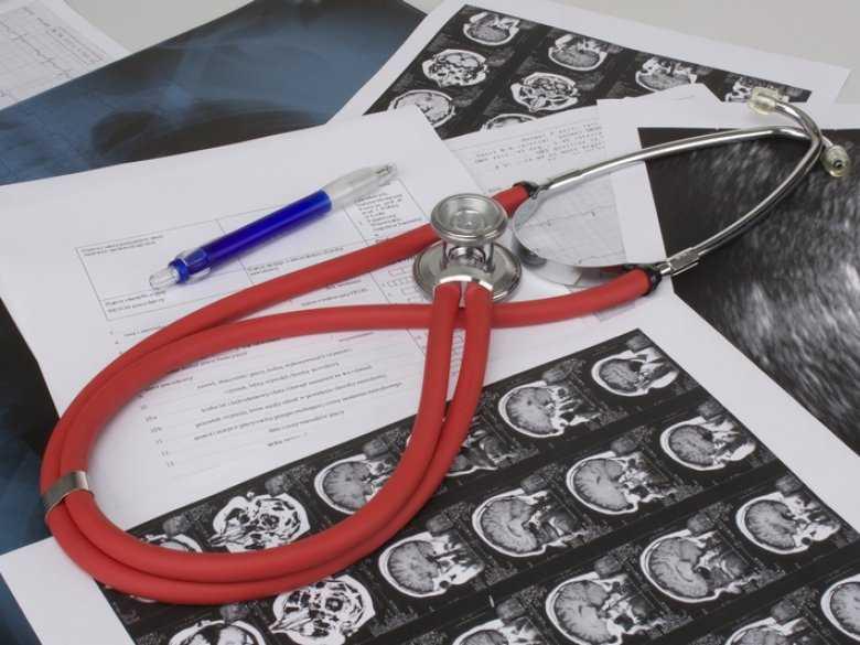Stymulacja jądra niskowzgórzowego w chorobie Parkinsona