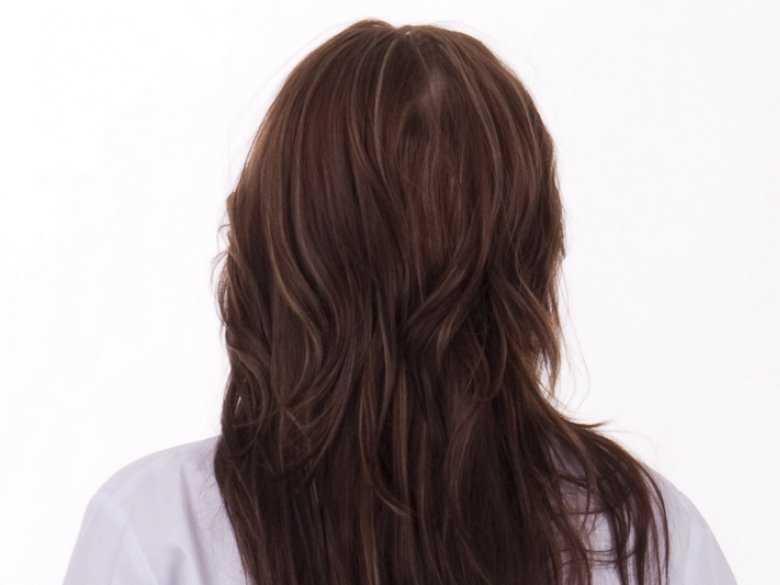 Zespół wielotorbielowatych jajników a utrata włosów