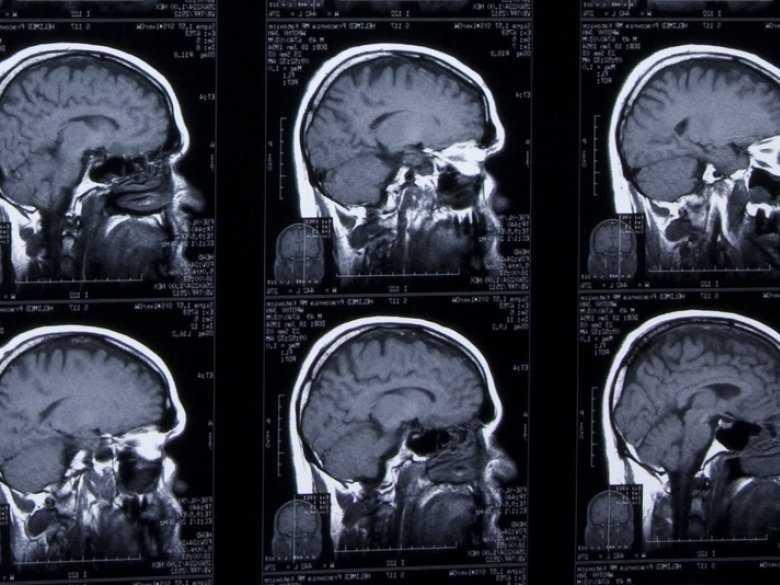 Schizofrenia i depresja – patofizjologia