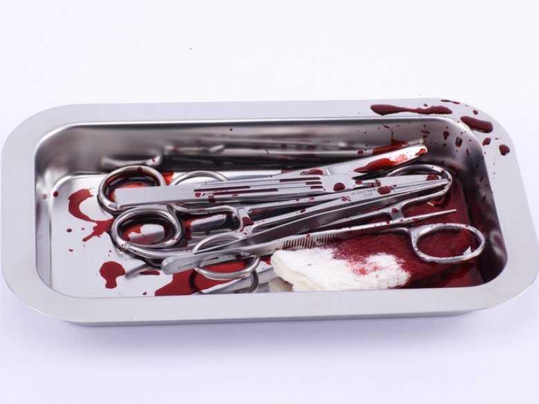 Leczenie ostrych udarów krwotocznych
