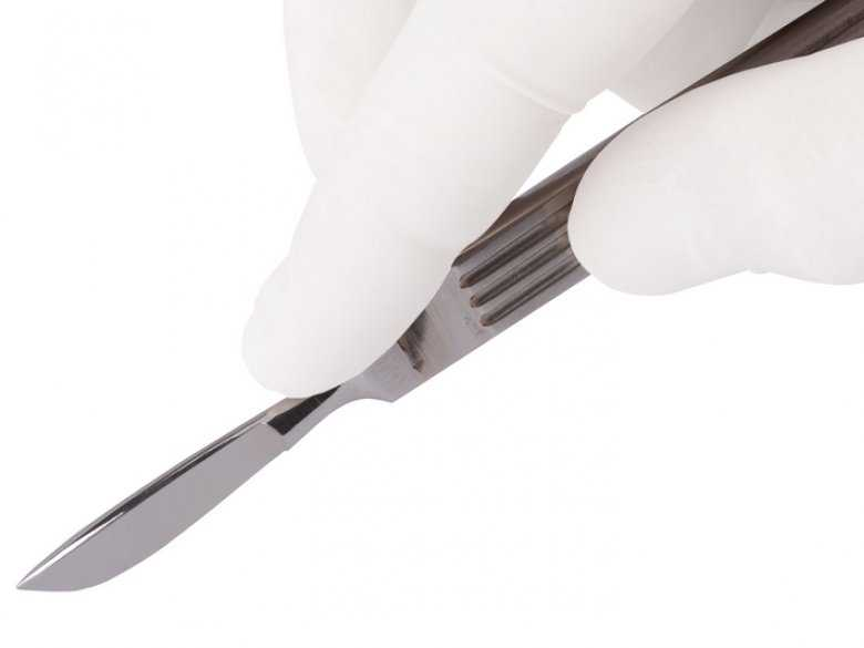 Skutki zamknięcia dużego naczynia wewnątrzczaszkowego