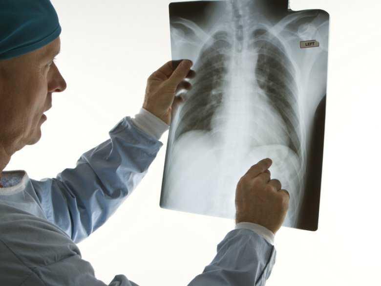 Gruźlica płuc u dzieci: część 3