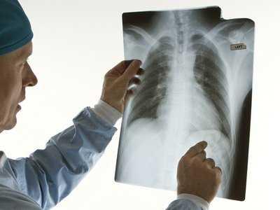 Promieniowanie rentgenowskie a ciąża