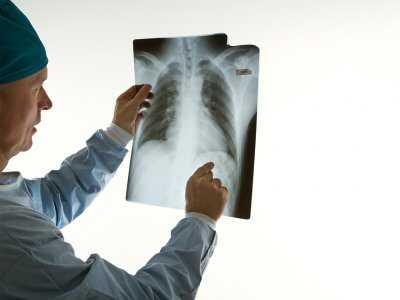 Duszność przy zapaleniu oskrzeli i płuc
