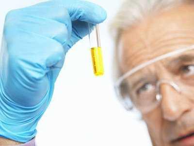 Wynik badania moczu - obecne bakterie