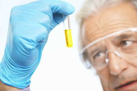 Rak prostaty – pomiar PSA a ryzyko zgonu