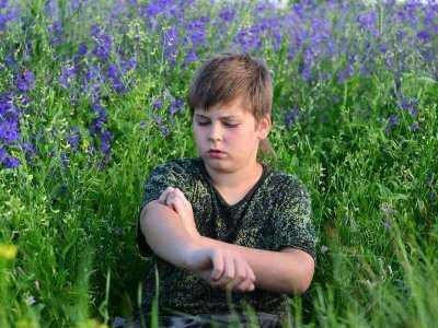 Alergia kontaktowa u dzieci: badania dotyczące czynników, które mogą być jej przyczyną