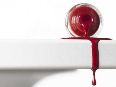 Krwawiące dziąsła