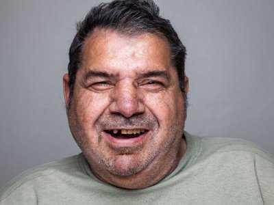 Dlaczego otyłość może zwiększać ryzyko chorób przyzębia?