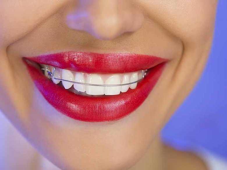 Aparat nazębny, zdrowy i piekny uśmiech