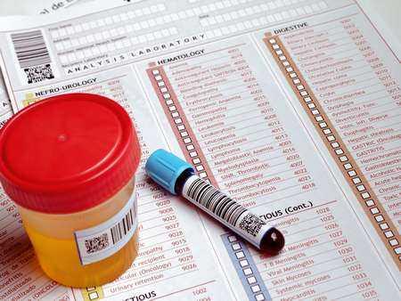 badania_diagnostyczne_probki_mocz_krew_wyniki_badan_panthermedia_a12173094_cr
