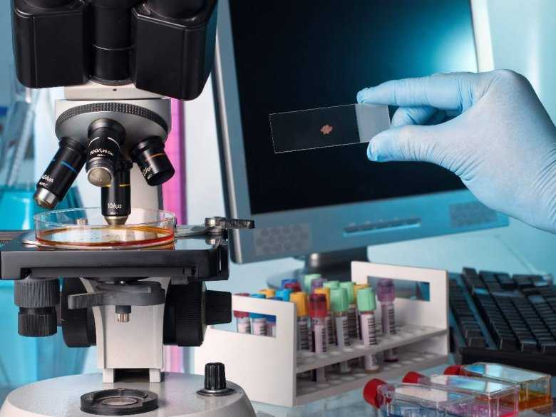 Test na krew utajoną a endoskopia – porównanie wyników