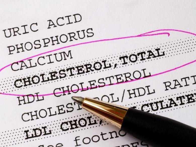 Badanie poziomu cholesterolu