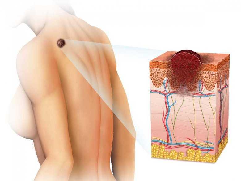 Rak skóry i stany przednowotworowe