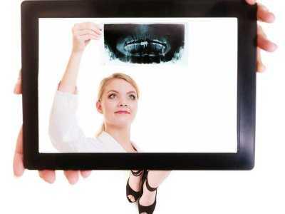 Odsłonięte szyjki zębowe - przyczyny, leczenie