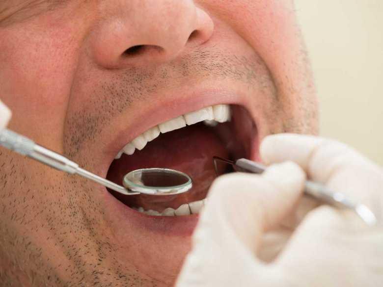Kontrola zębów u denstysty