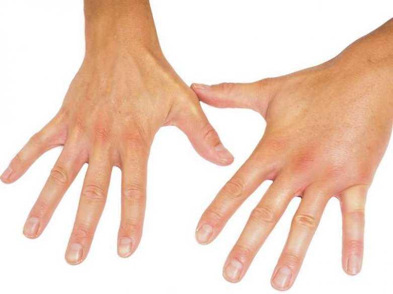 Czy mrowienie rąk jest niebezpieczne?