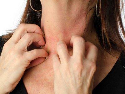 Epidemiologia alergii kontaktowej na nikiel