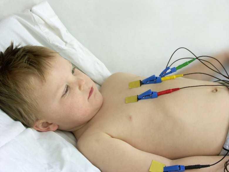 Urojenia u dzieci leczonych na oddziałach intensywnej opieki medycznej