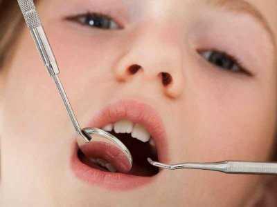 Jak dbać o zęby u dziecka?