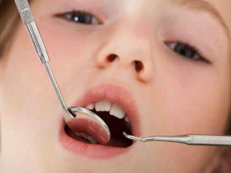 Defekty szkliwa zębowego jako objaw celiakii u dzieci