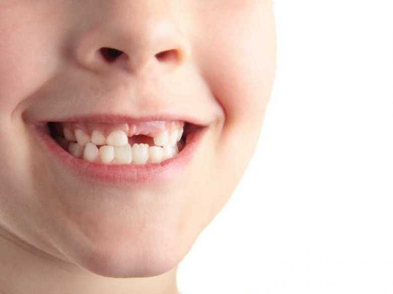 Zęby mleczne i zęby stałe