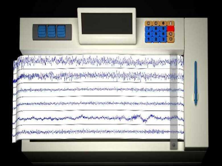 Zapis badania EKG