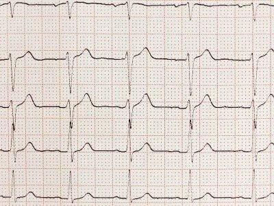 Diagnostyka przez badania EKG