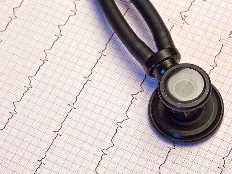 Rozpoznanie choroby wieńcowej - jakie badania należy wykonać?