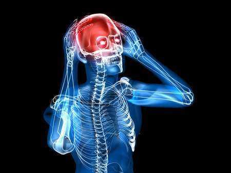 Krwotoczny udar mózgu - objawy, diagnoza, leczenie