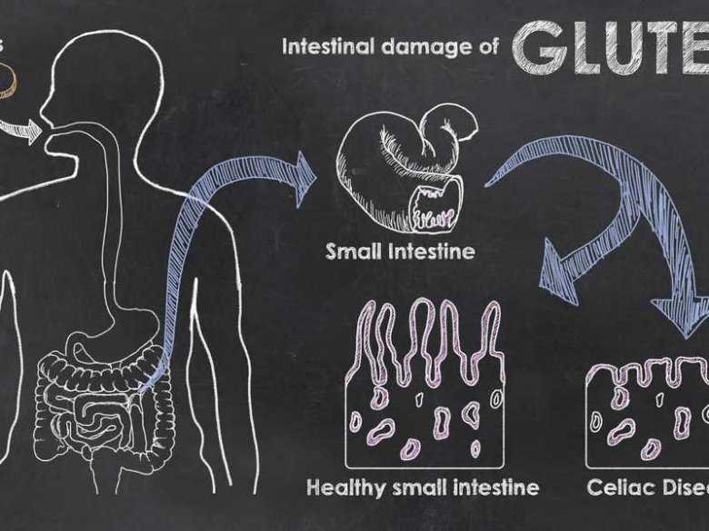 Choroby związane z glutenem. Celiakia, alergia na pszenicę, nieceliakalna nadwrażliwość na gluten