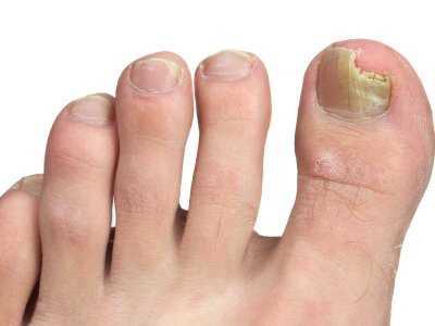Grzybica paznokci – jak ją leczyć?