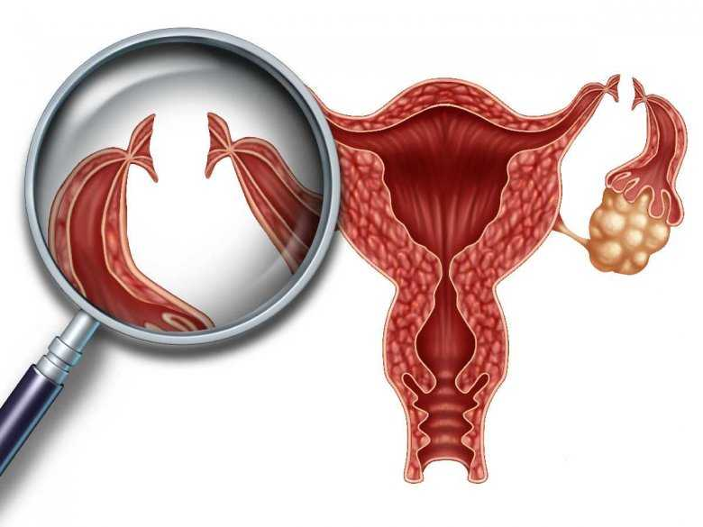 Anaplastyczny chłoniak jajnika u 14-letniej dziewczynki – opis przypadku