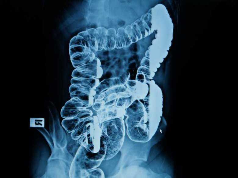 Angiodysplazja jelitowa - objawy, diagnoza, leczenie
