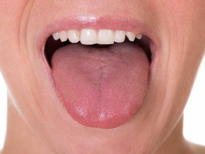 Jakie mogą być przyczyny krwawienia z języka?