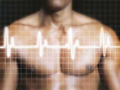 Zawał serca a wszczepienie stentów