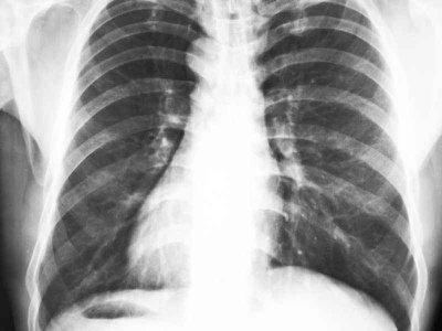 Zdjęcia RTG klatki piersiowej w kardiologii