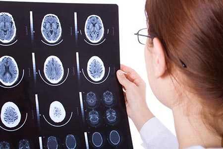 Dzięki MRI można wykryć dysleksje u dzieci