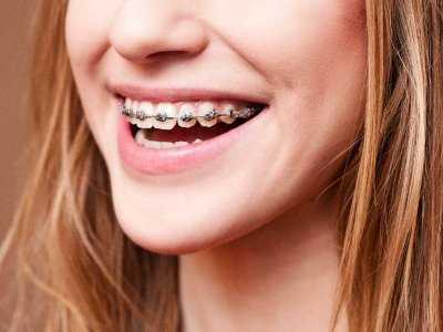 Jak dbać o zęby pod aparatem ortodontycznym