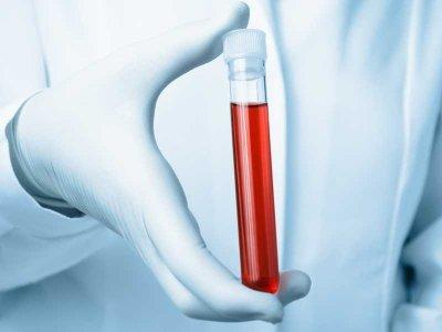 Choroba hemolityczna u noworodków