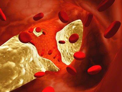 Tętniaki - groźna i podstępna choroba naczyń