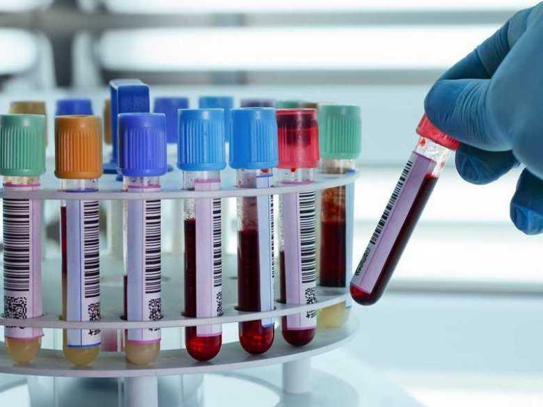 Jakie badania krwi powinna wykonać kobieta ciężarna?