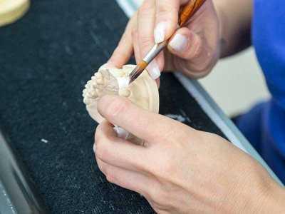 Proteza szkieletowa - jej wady oraz zalety