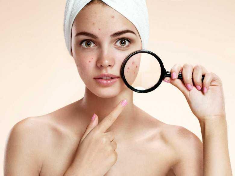 Stres jako przyczyna objawów dermatologicznych