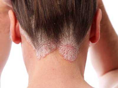 Łuszczyca skóry głowy – przyczyny, objawy i leczenie