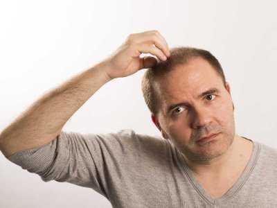 Niedobór witaminy D może sprzyjać łysieniu