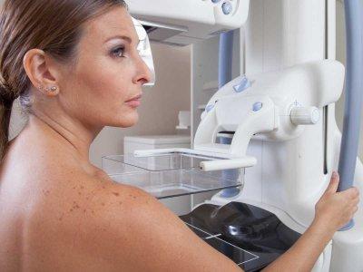 Nie bój się mammografii