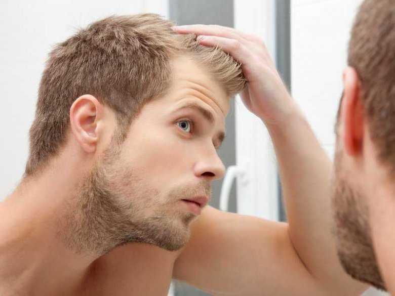 Przetłuszczająca się skóra głowy