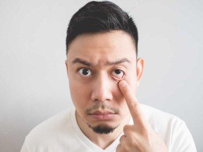 Jakie mogą być przyczyny drgania powiek?